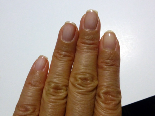 指日焼け.jpg